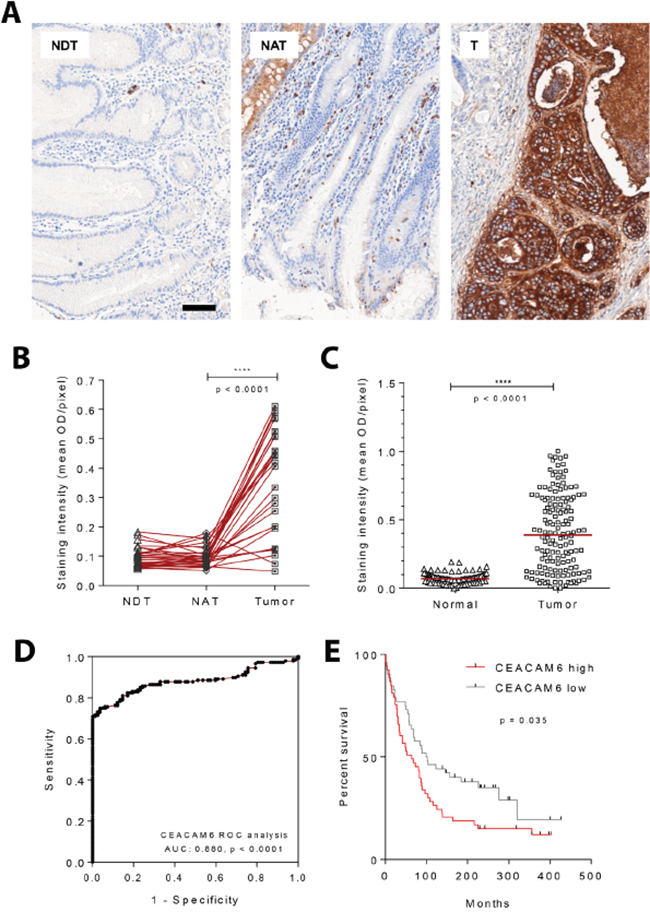 CEACAM6 protein expression by quantitative immunohistochemistry in gastric cancers.