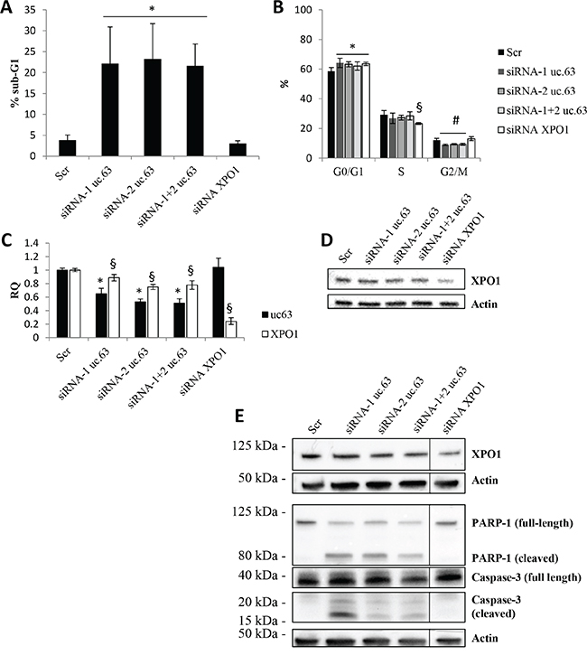 uc.63 knockdown induces apoptosis in MDA MB 453 cell line.