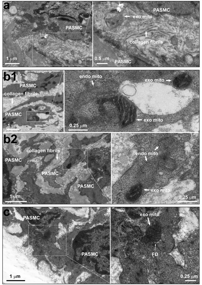 The existence of individual mitochondria within the intercellular space and junction between pulmonary artery endothelium and smooth muscle cells.