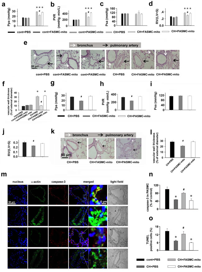 Therapeutic and preventive effects of transplanted mitochondria via intravenous injection on chronic hypoxia-induced pulmonary hypertension in rats.