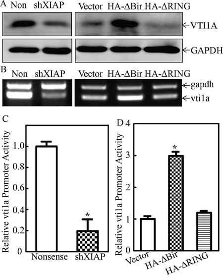 XIAP RING domain promoted miR-4295 host gene VTI1A transcription in human bladder epithelial cells.