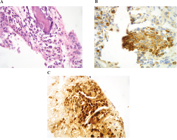 Core-biopsy of osteolithic lesion in the D9 vertebra showing bone infiltration by proliferation of round cells with hyperchromatic nucleus and occasional prominent nucleoli
