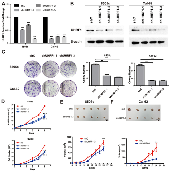 Suppression of UHRF1 inhibits the proliferation ability of thyroid cancer cells in vitro and in vivo.