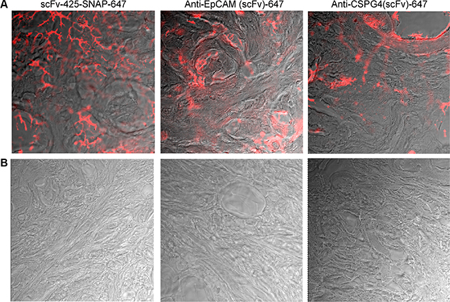 Fluorescence immunohistochemistry of scFv-SNAP-Alexa Fluor®647-labeled proteins against EGFR, EpCAM and CSPG4 in human breast cancer tissues (A) and normal breast tissue (B).