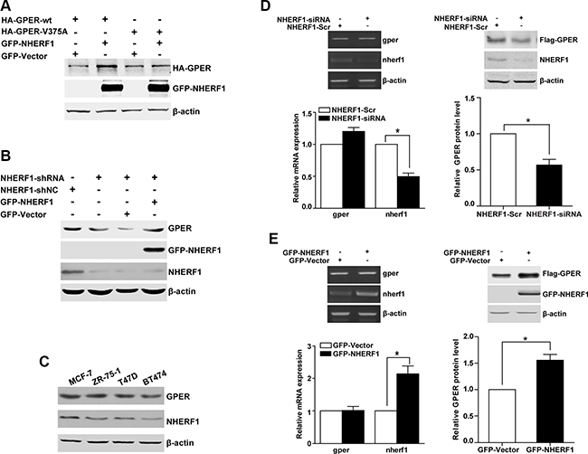 NHERF1 enhances the level of the GPER protein at the post-transcriptional level.