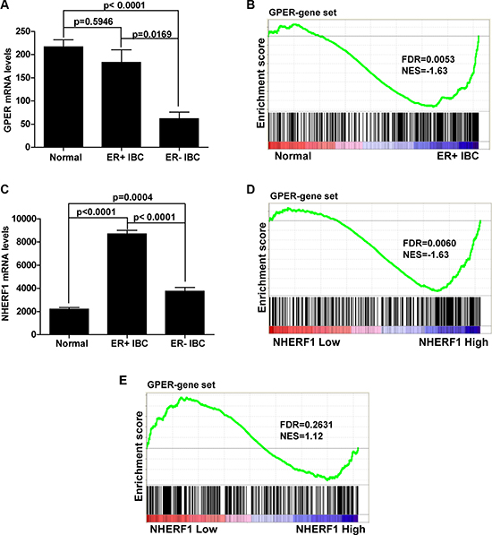 NHERF1 expression level positively associates with GPER activation in ER-positive breast cancer.