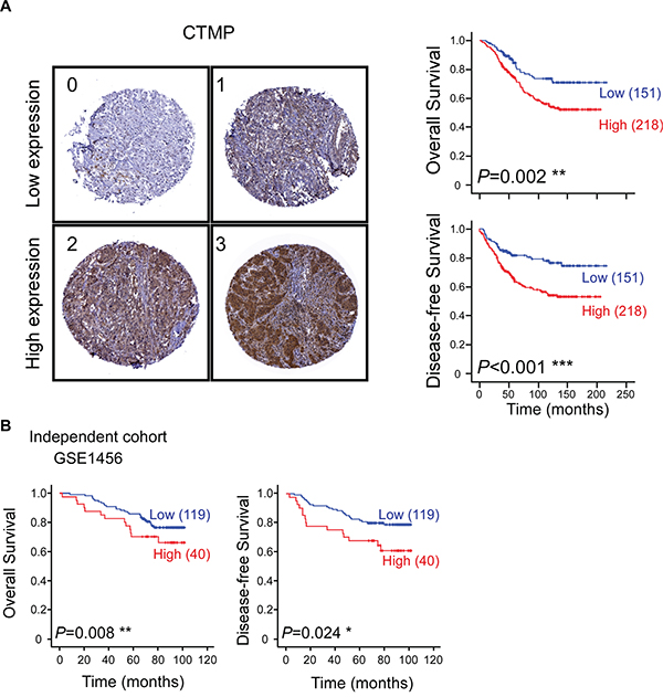 High CTMP expression is associated with poor survival and early recurrence in breast cancer patients.