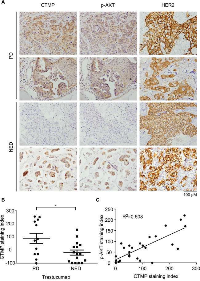 CTMP expression correlates with trastuzumab resistance in clinical samples.