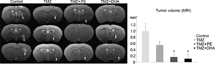 Combination therapy of either PE or DHA administered with TMZ is more effective than TMZ-monotherapy against LN-Z308 derived tumors in mice.