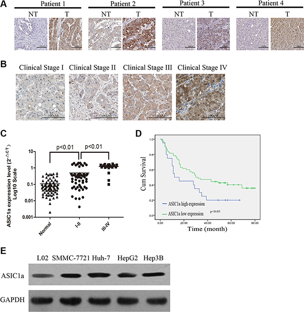 ASIC1a is up-regulated in liver cancer tissues and cell lines and is associated with poor prognosis.