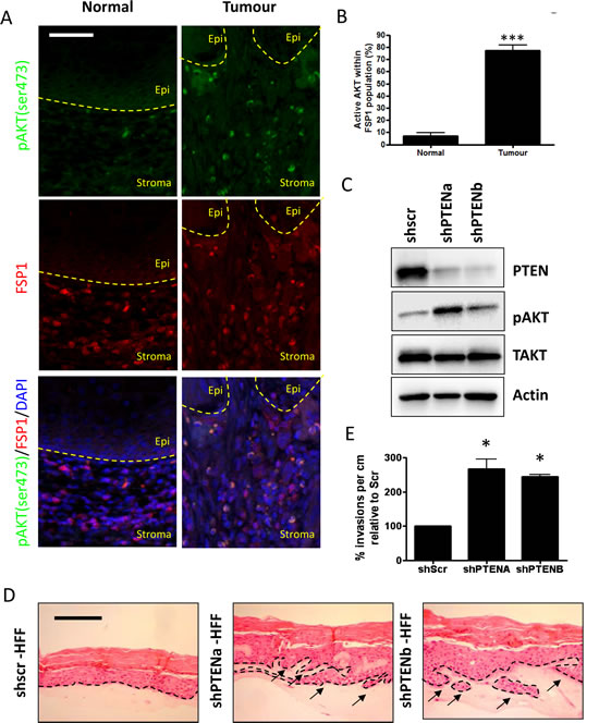 Stromal fibroblasts in oro-pharyngeal cancers contain activated AKT A) Oro-pharyngeal tumour samples were stained with anti-pAKT (Ser 473) and anti-Fibroblast Specific Protein 1 (FSP1).