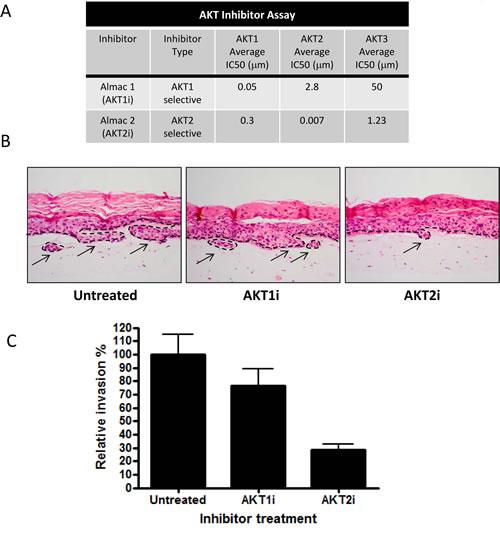 An AKT2 inhibitor reduces invasion.