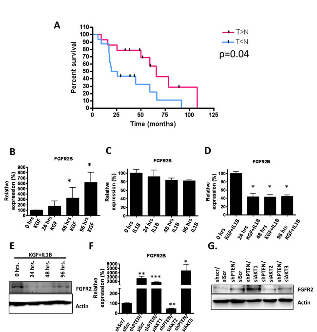 A) mRNA was obtained from 22 oro-pharyngeal tumour biopsies and matched non-tumour tissue and IL1B and FSP1 levels were determined using real-time PCR analysis.