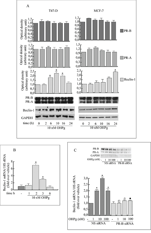 OHPg through PR-B up-regulates Beclin-1 protein and mRNA levels in breast cancer cells.