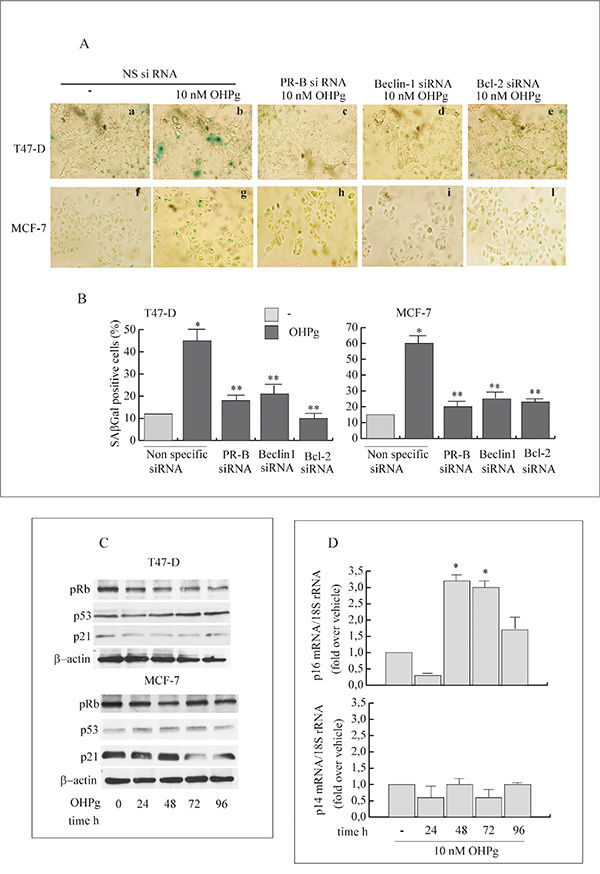 OHPg/PR-B induce cellular senescence and influence p16-pRb pathway in breast cancer cells.