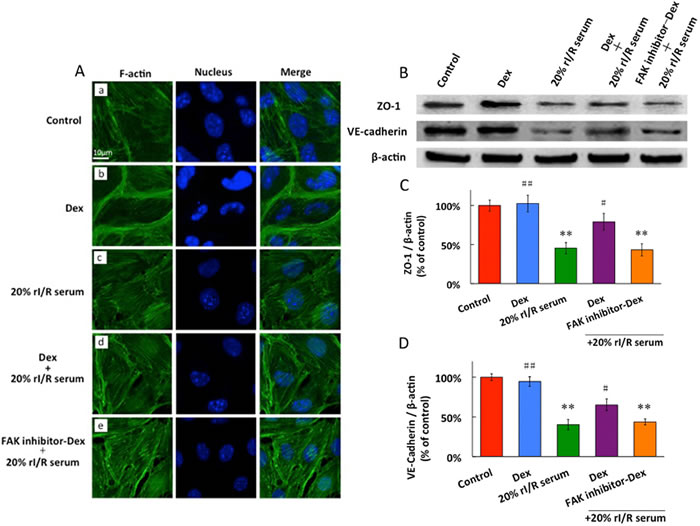 The effects of rI/Rserum on F-actin cytoskeletal assembly
