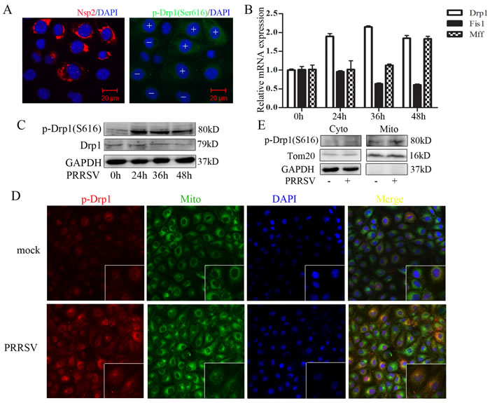PRRSV infection enhances Drp1 phosphorylation and its mitochondrial translocation.