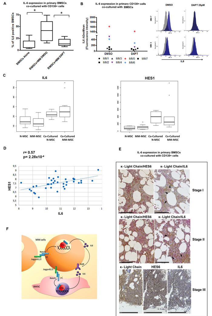 Inhibition of NOTCH signaling abrogates myeloma-induced IL-6 production by BMSCs