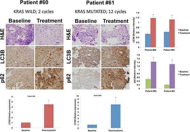 HCQ and VOR increase the expression levels of LC3B, p62, and cathepsin D.