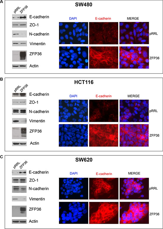 Analysis of epithelial markers in ZFP36 overexpressing cells.