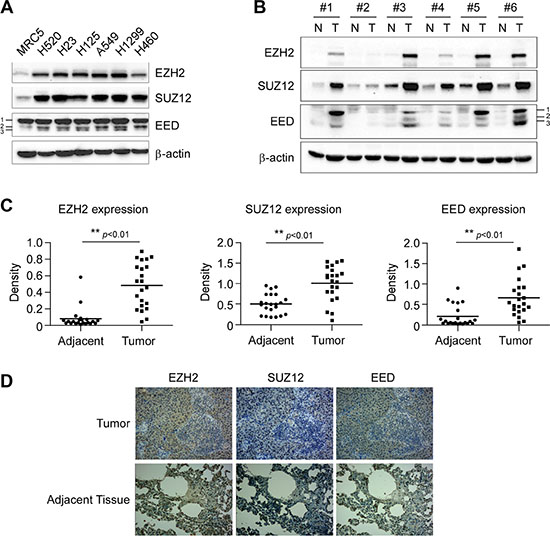 Aberrant overexpression of PRC2 proteins EZH2, SUZ12 and EED in human non-small cell lung cancer.