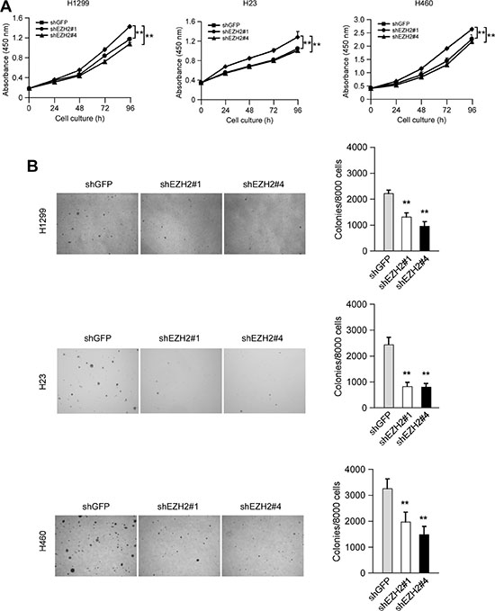 Knocking down the PRC2 catalytic component EZH2 expression reduces human non-small cell lung cancer cells proliferation in vitro.