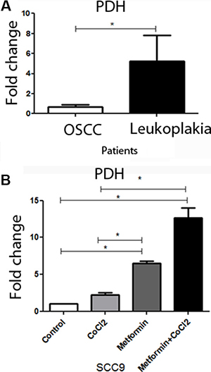 PDH levels in patients and the effect of metformin on PDH levels in SCC9 cells.
