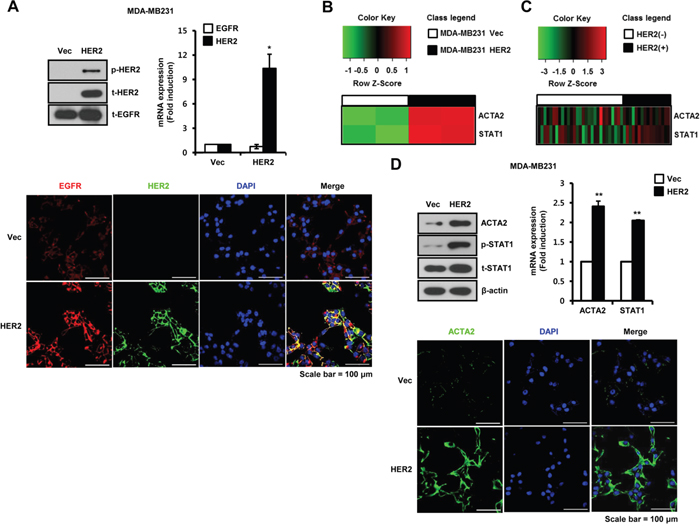 ACTA2 and STAT1 expression are increased by HER2 overexpression in breast cancer cells.
