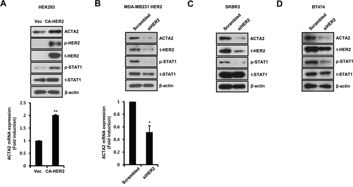 Alteration of HER2 expression regulates ACTA2 expression.