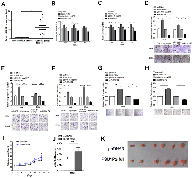 Differential expression of RSU1P2 and RSU1P2 has a growth-promoting role in cervical carcinoma cells.