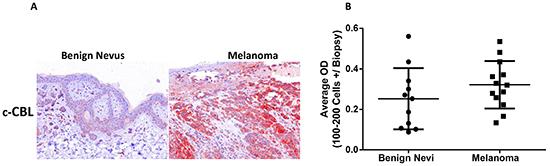 Oncotarget   c-CBL regulates melanoma proliferation