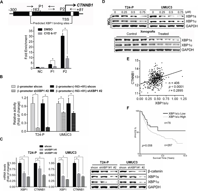 Regulation of β-catenin expression by XBP1 and its clinical relevance.