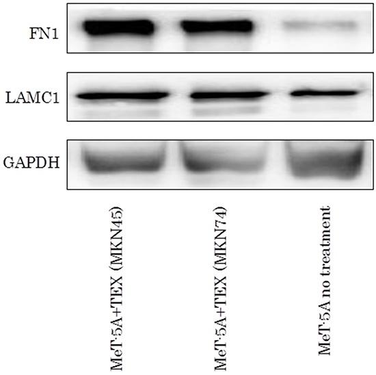 The western blotting assay of FN1 and LAMC1 in TEX-internalized MeT-5A cells.