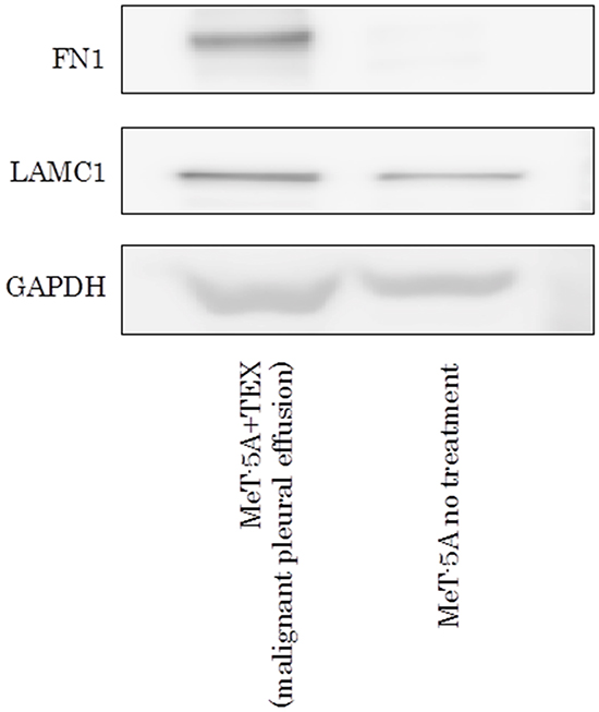 Western blotting assay of FN1 and LAMC1 in MeT-5A ingested TEX from malignant pleural effusion.