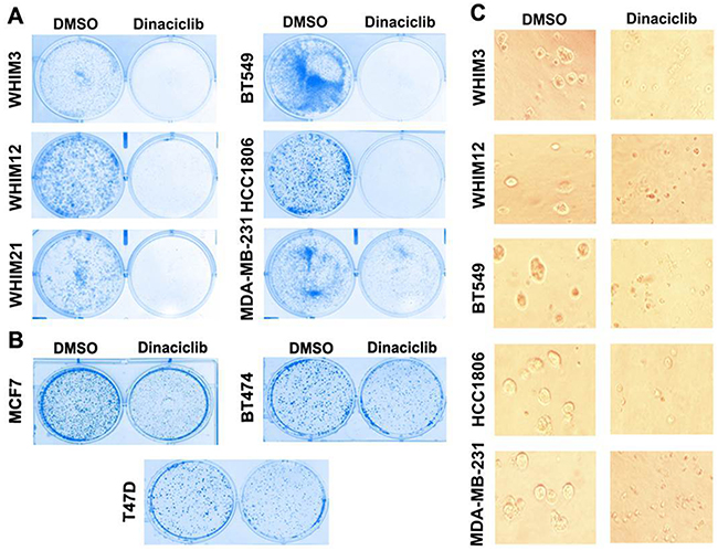 Dinaciclib inhibits cell proliferation of TNBC more effectively than that of ER+ breast cancer.