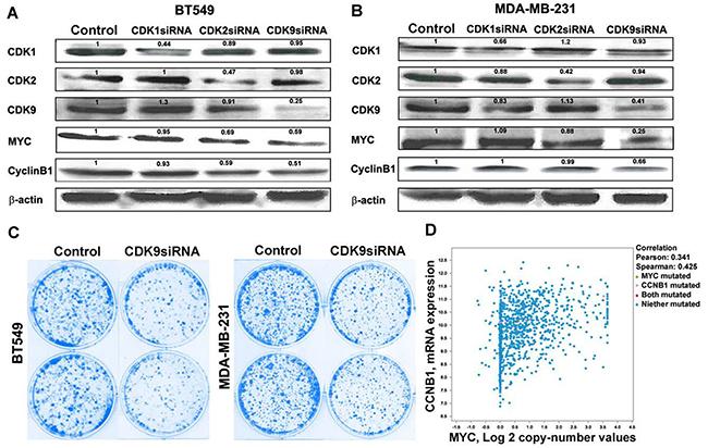 Dinaciclib inhibits cyclin B1 via targeting CDK9-cMYC axis.