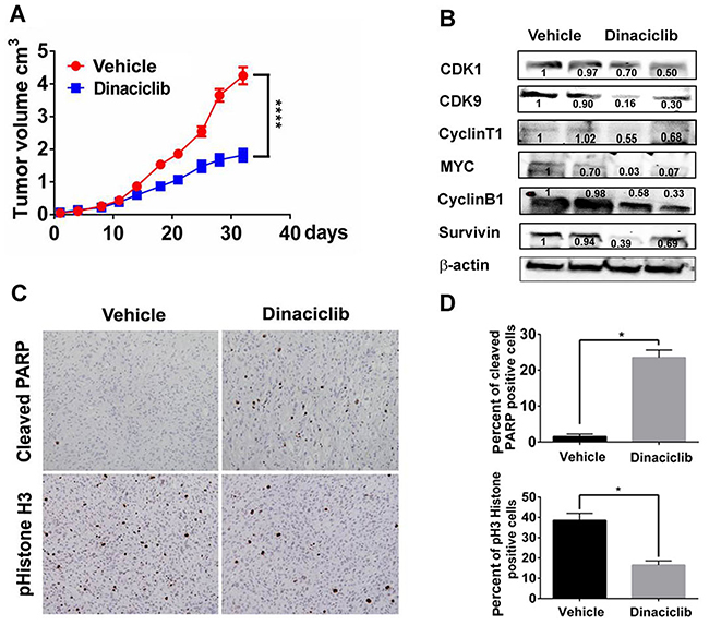 Dinaciclib inhibits tumor growth in a TNBC PDX model in vivo.