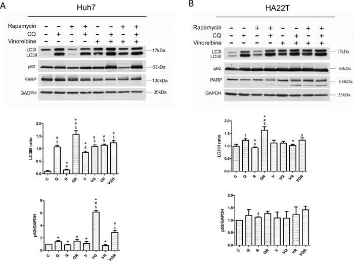 Western blot analysis of autophagy markers LC3II and p62 and apoptosis marker PARP in hepatoma cells after combination drug treatment.