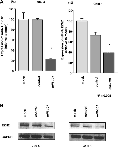 Effects of miR-101 transfection on EZH2 mRNA and protein expression in RCC cells.