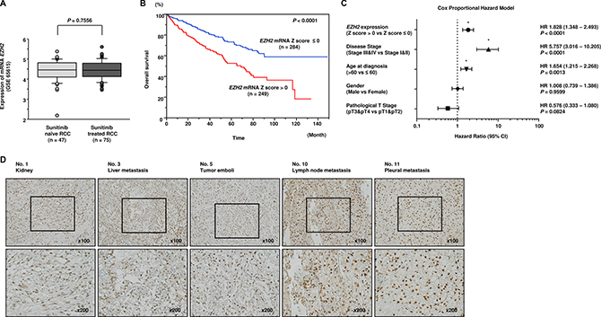 Clinical significance of EZH2 expression in RCC.