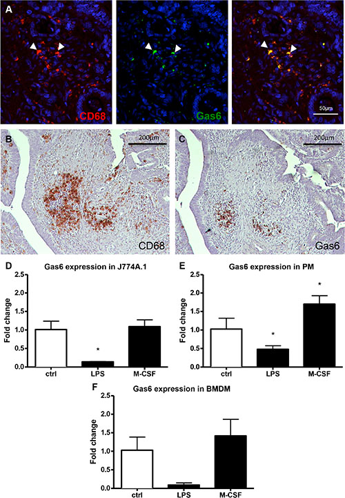 In vivo and in vitro expression of Gas6 in human and murine macrophages.