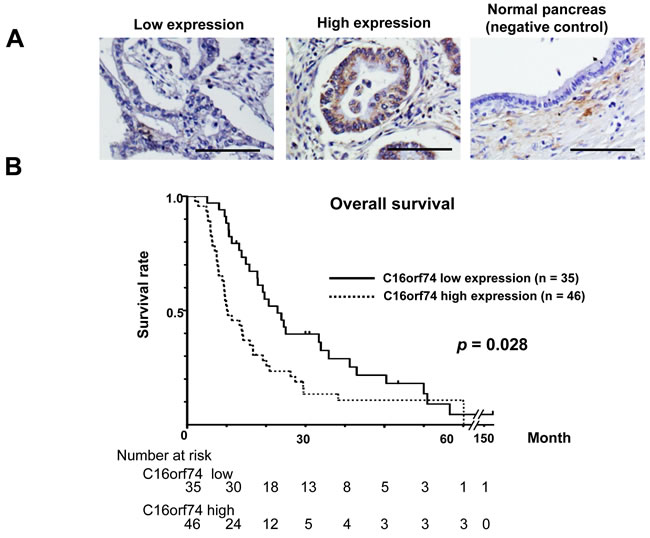 Expression of C16orf74 in human PDAC tissues and its correlation with overall survival.