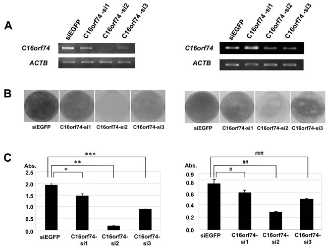 Effect of knockdown of C16orf74 on cancer cell growth.