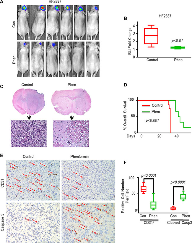 Phenformin inhibits tumor growth and angiogenesis, induces apoptosis and increases the overall survival in GSC-derived xenografts.