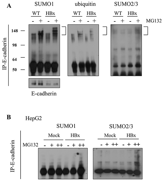 E-cadherin was degraded by SUMOylation in mouse livers and HepG2 cells.