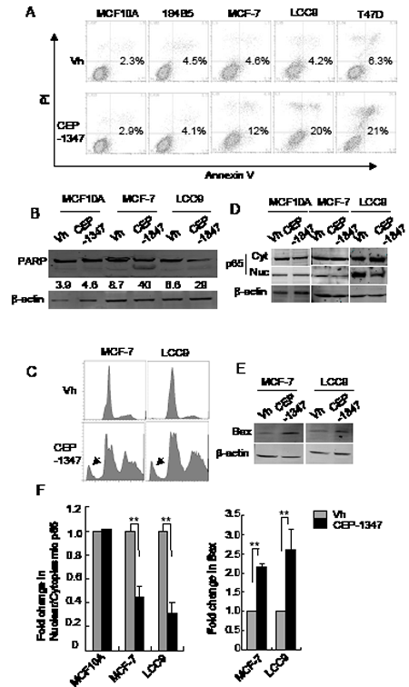 MLK inhibition induces apoptosis in breast cancer cells but not in non-tumorigenic cells.
