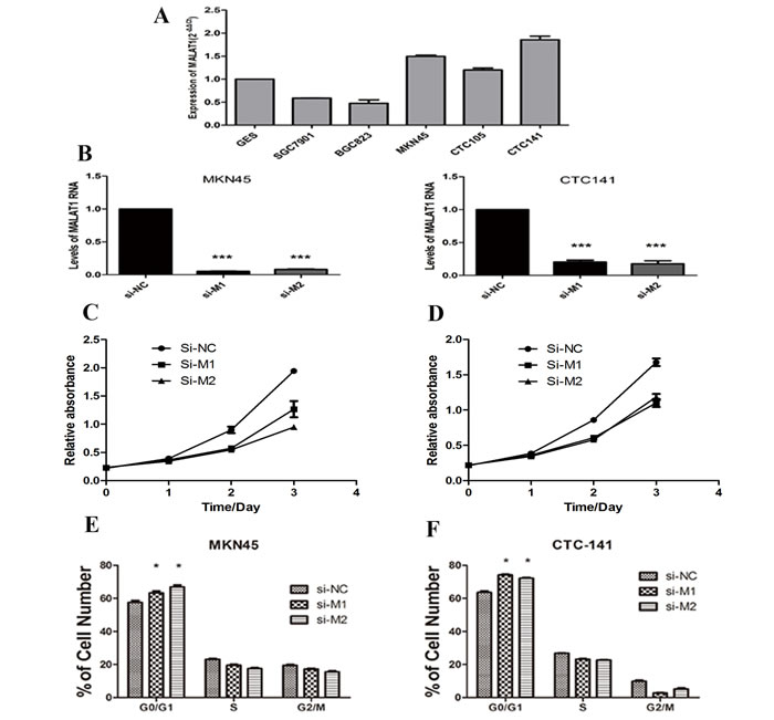 MALAT1 expression levels in gastric cancer cell lines and the effect of MALAT1 on cell proliferation.