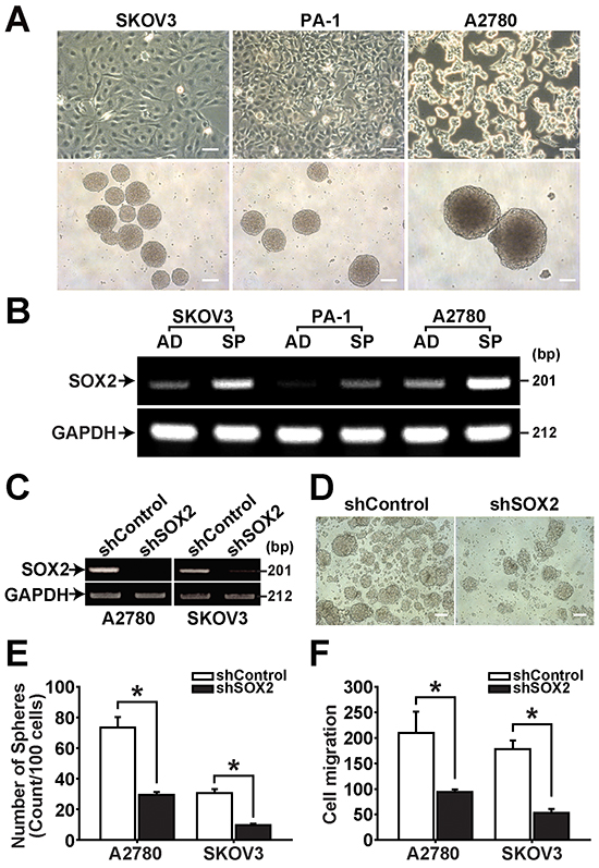 SOX2 expression is increased in spheres of ovarian cancer cells.
