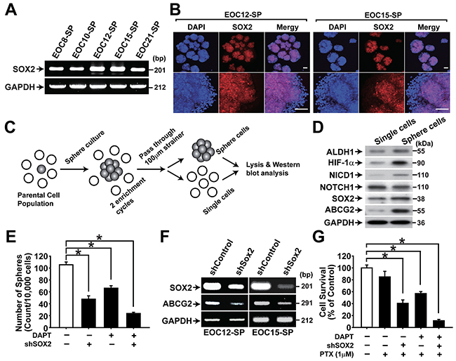 NOTCH1 and SOX2 are important for maintaining CSC properties in primary ovarian cancer cells.