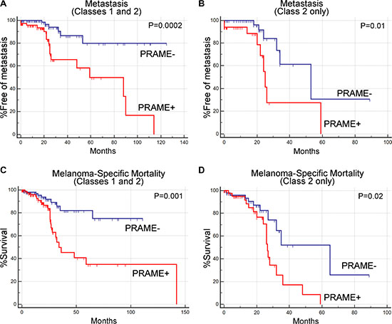 Prognostic significance of PRAME expression status in uveal melanoma.